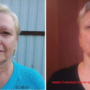 Омоложение лица и шеи- Витапластика, в Краснодаре