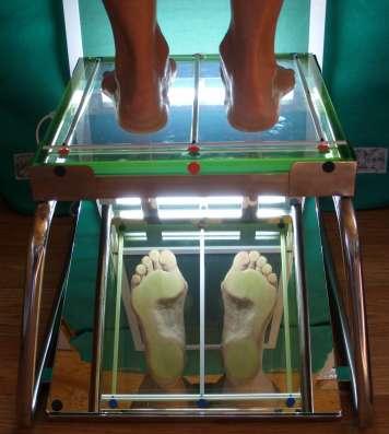 Экспресс-моделирование ортопедических стелек на стопе в г. Королёв Фото 3